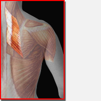 Rhomboid Muscle Strain