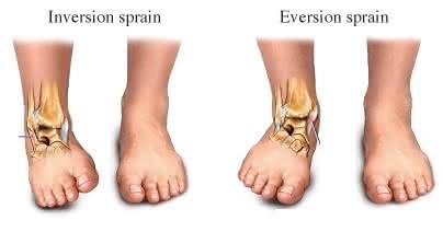 Breg Ankle Brace Lock