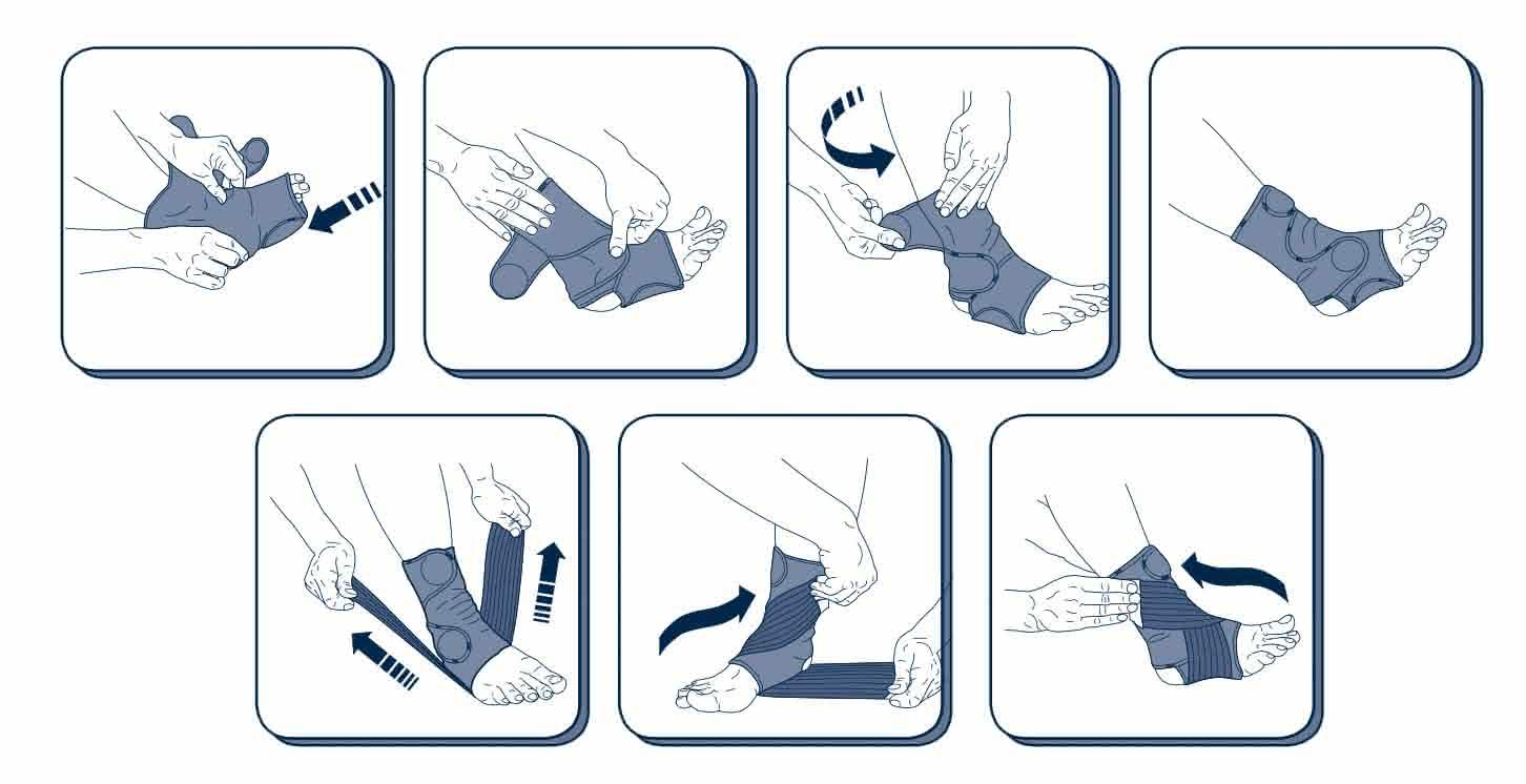 M-Brace Mercurio Ankle Lock Ankle Brace