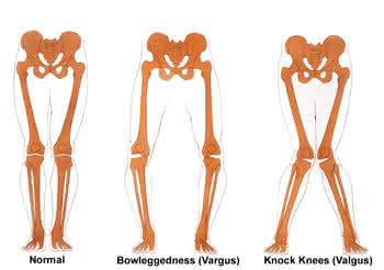 donjoy oa everyday medial lateral