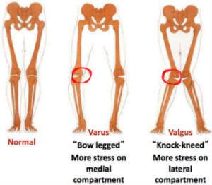 Donjoy Clima Flex OA Knee Brace Medial Lateral
