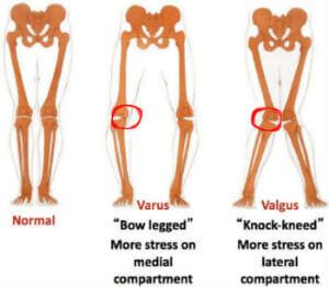 Donjoy OA FullForce Medial Or Lateral