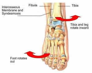 how does high ankle sprain occur