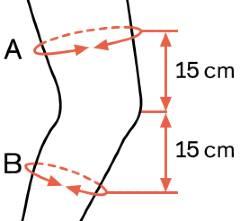 Ottobock Agilium Reactive Knee Brace sizing