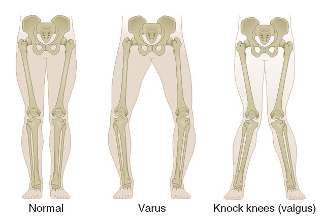 Medi M3 OA Knee Brace Orthosis